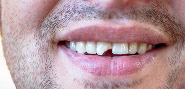 Damaged teeth can cause dental problems.