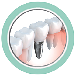 Dental implants offer amazing solutions to dental problems