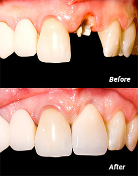 Before and after a dental crown