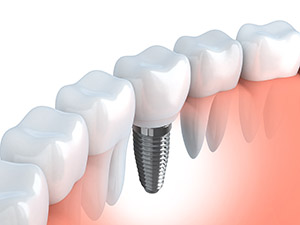 Implants are a cost-effective and healthy solution