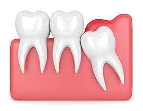 Wisdom teeth--what you need to know